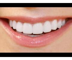 http://www.facts4supplement.com/total-radiance-teeth-whitening-pen/